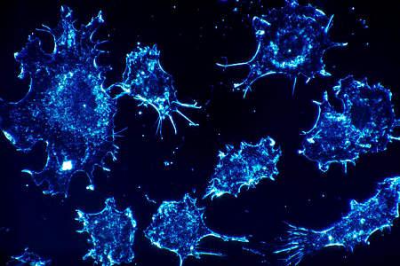 Wer an bestimmten Krebsarten erkrankt hat Pech gehabt