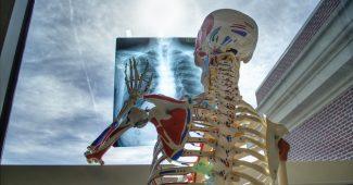 Bei Schmerzen im Ruecken – Orthopaedie oder Osteologie