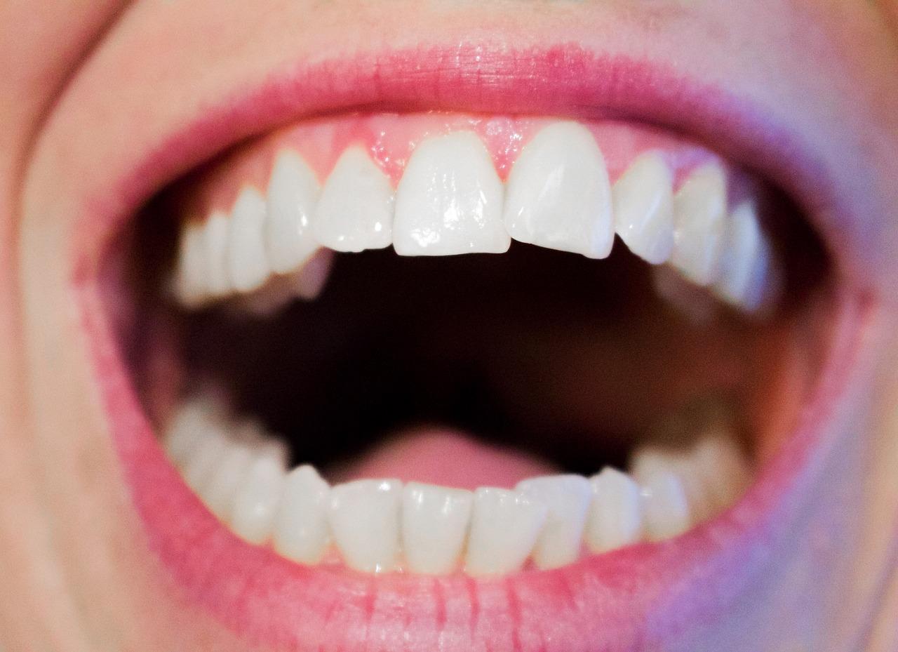 Sparen beim Zahnimplantat mit Copycats und Preisvergleich