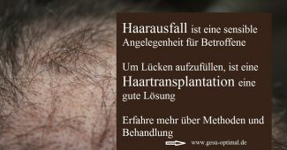 Haarausfall – Haartransplantation füllt die Lücken